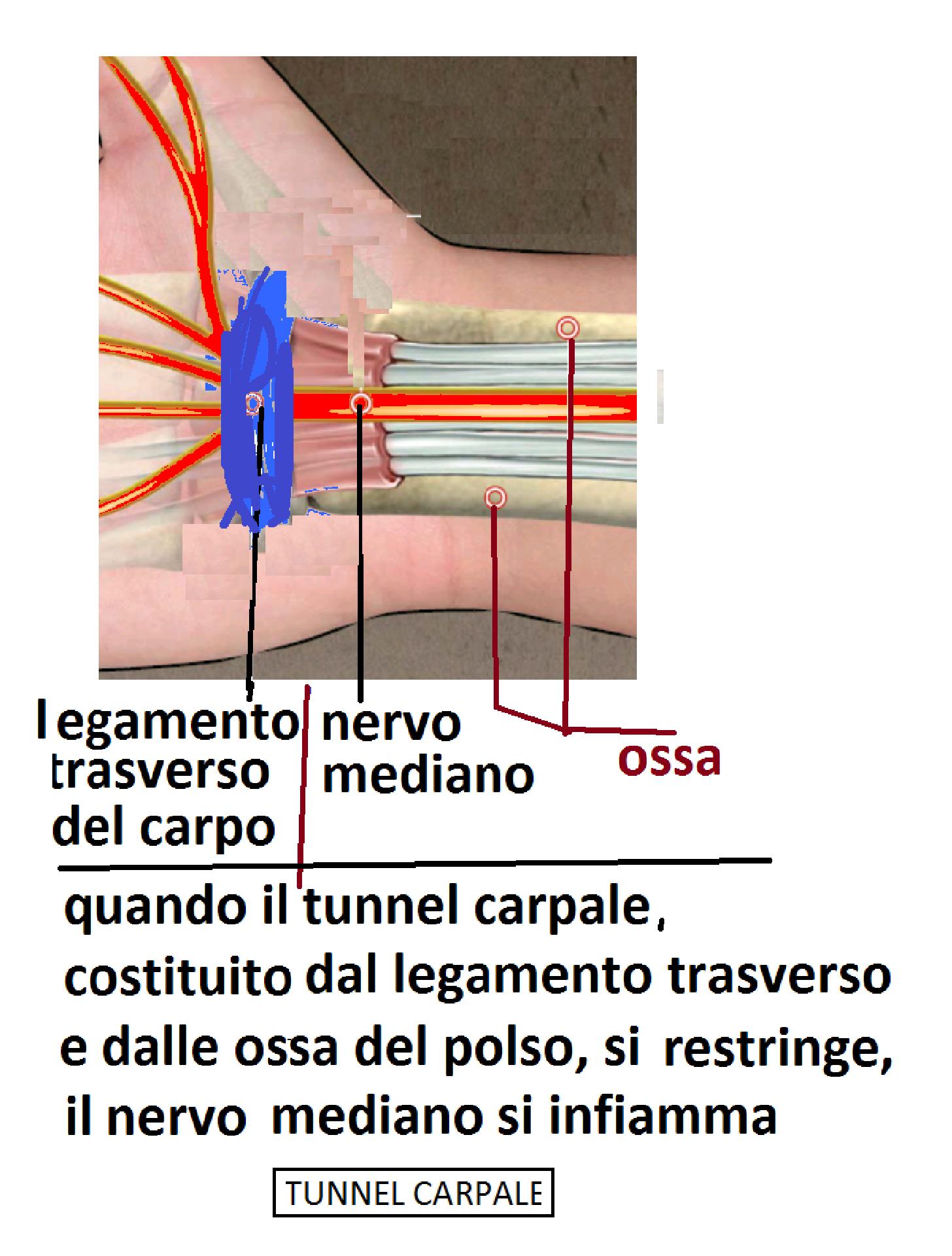 NOTA 6 – Per mettere in evidenza UN SINTOMO IMPORTANTE dell artrite  reumatoide ddd8dab31e4b