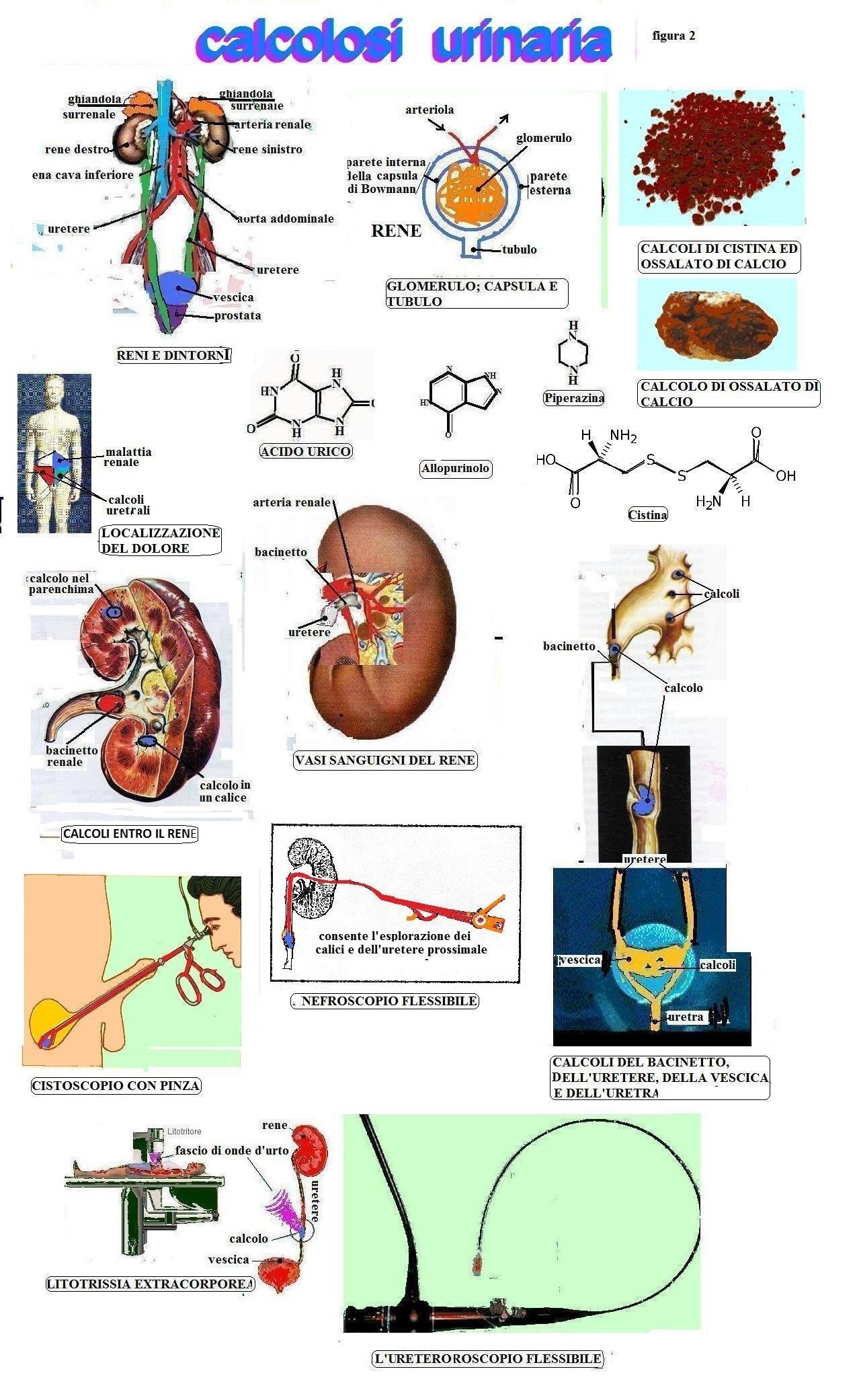 calcoli nella prostata ed nella vescica locuzione 1